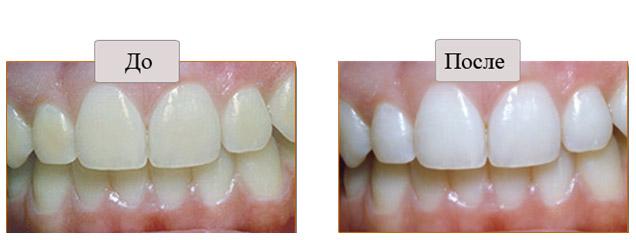 сравнение зубов
