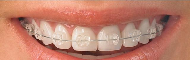 Ортодонтия. Брекет-системы