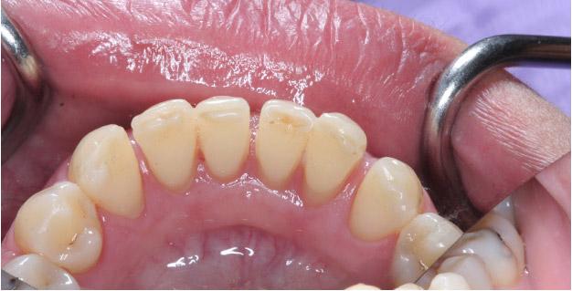 результат медицинской чистки зубов