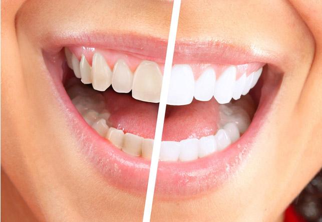 наглядное сравнение белизны зубов