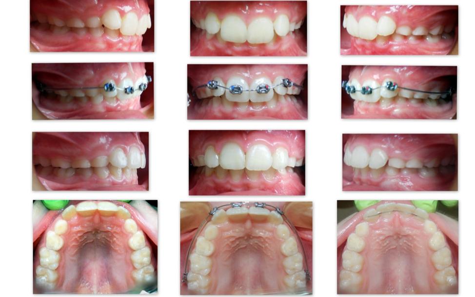 Ортодонтические работы 2
