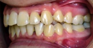 Ортодонтические работы