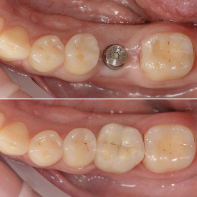 имплантация+протезирование на имплантах